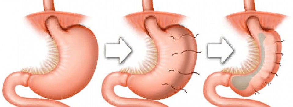 Gastric Sleeve Plication in Tijuana, Mexico