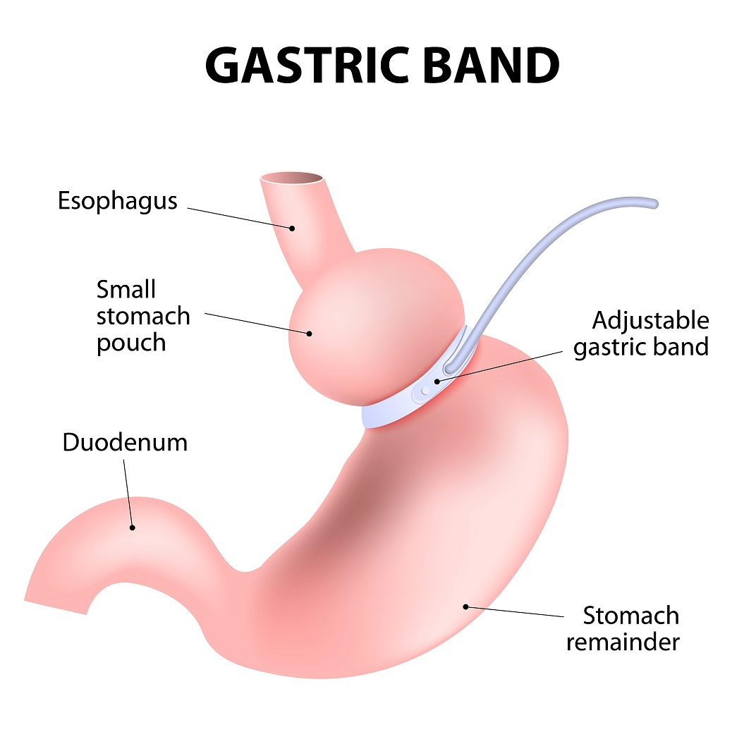 Lap Band in Mexico - Gastric Banding Weight Loss Procedure