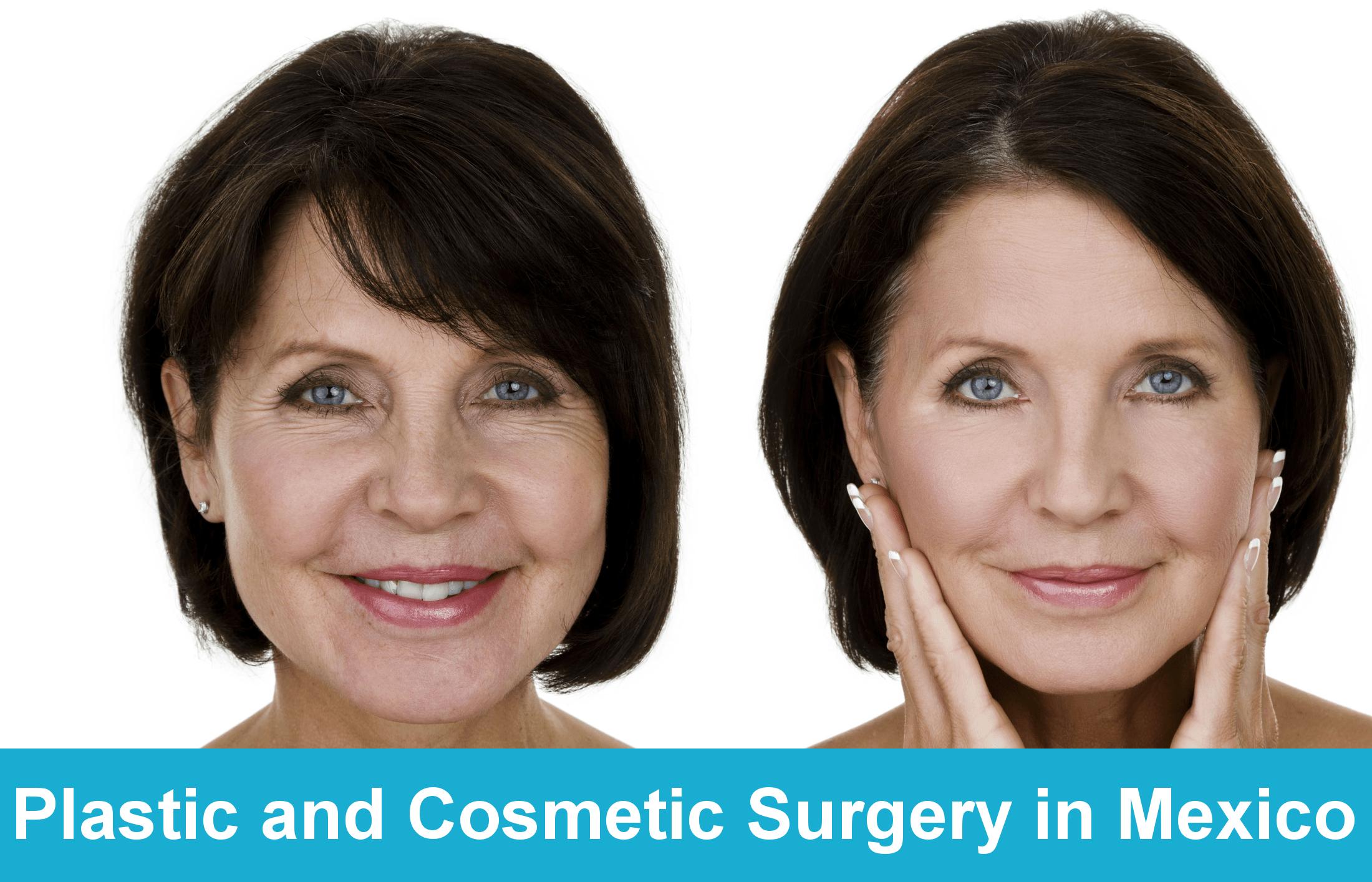 Plastic and Cosmetic Surgery in Mexico - Tijuana Bariatrics Center-min