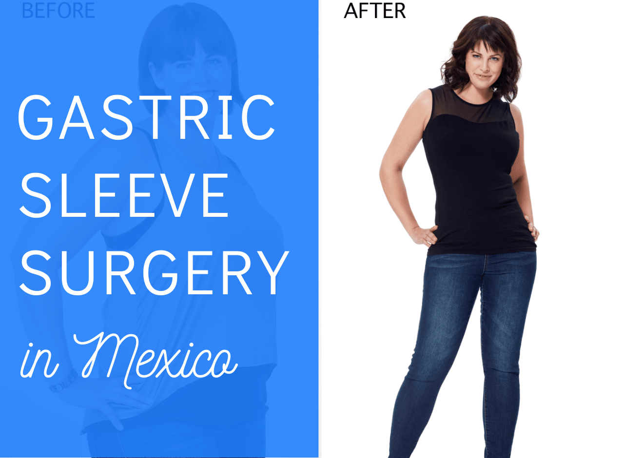 VSG Gastric Sleeve Surgery in Mexico - min