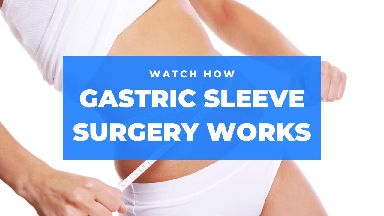 Watch How Gastric Sleeve Surgery Works Video - Tijuana Bariatrics Center-min