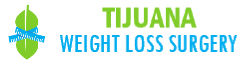 Tijuana Weight Loss Surgery